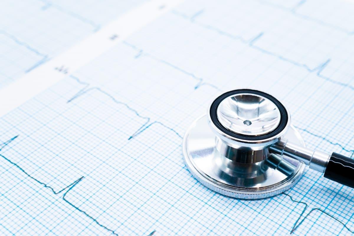 青い検査用紙に記録された心電図と聴診器