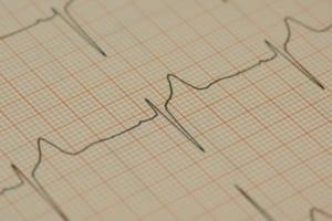 心電図波形の拡大